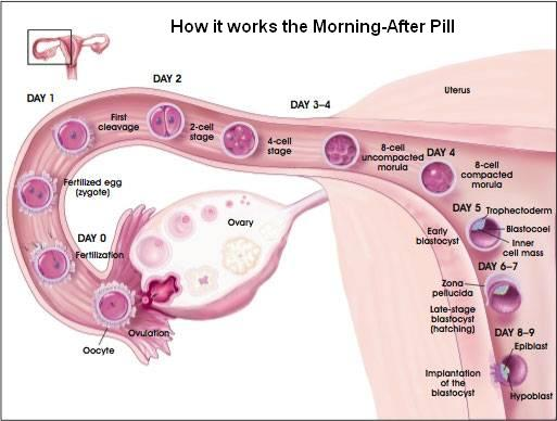 morning_after_pill_process_large